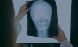 Compensation for Work-Related Head & Brain Injuries
